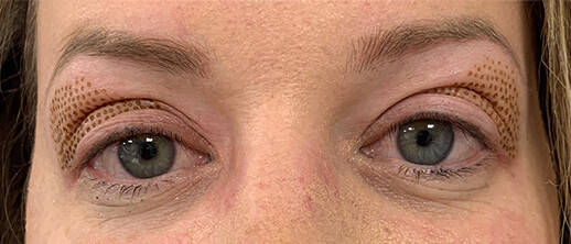After-PlexR ooglidcorrectie