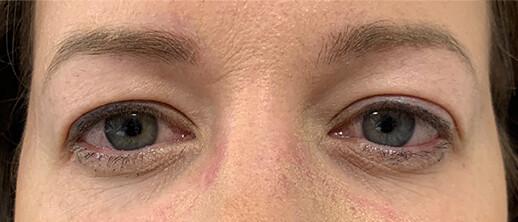 Before-PlexR ooglidcorrectie